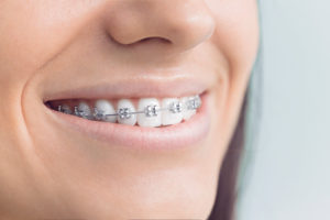 Discover your options for braces in Sayville.