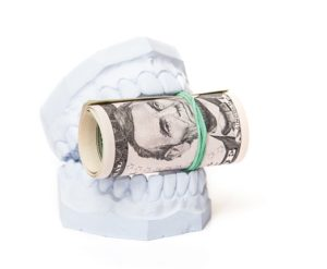 Plaster dental cast holding money