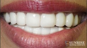 smile with veneers