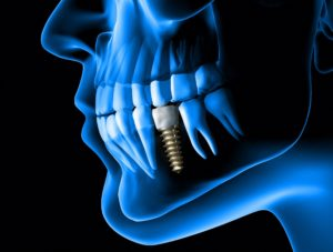digital representation of dental implant