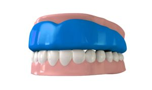 athletic mouthguard