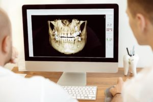 3D image of jaw for dental implants.