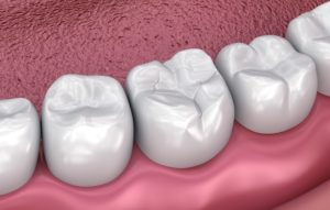 Image of dental sealant from dentist.