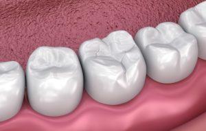 Image of dental sealant from dentist.