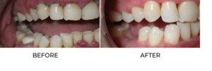 dentist-laser-gum-treatment