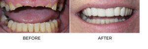 Smile makeover results by Dr. Makadia